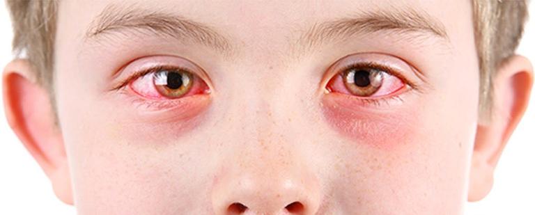 Ojos rojos y picazón, puede ser Conjuntivitis