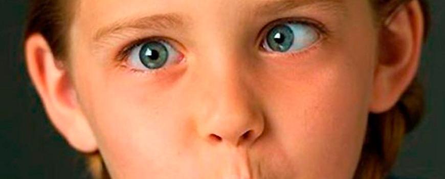 Tu niño tiene los ojos bizcos, se trata de estrabismo infantil
