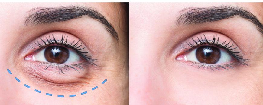 La oculoplastia rejuvenece la mirada y mejora la calidad de vida